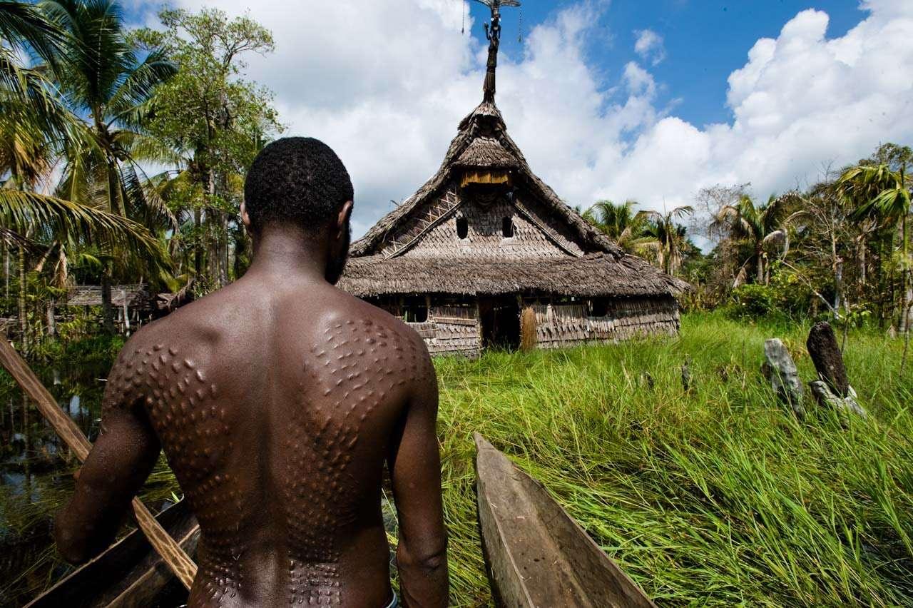 زخمهای بدن یک مرد در گینه نو